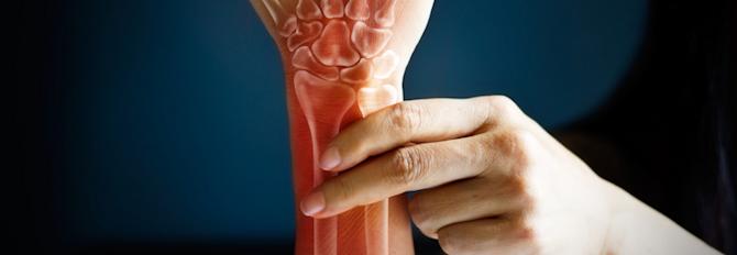 6 Exercises to Help Arthritis
